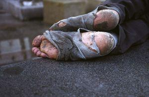 feet poor